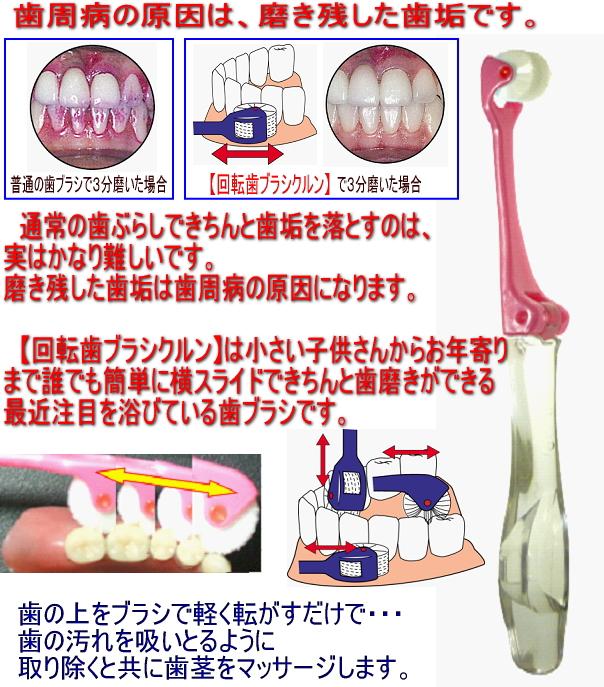歯周病予防!回転歯ブラシクルン